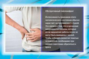 Приступ пиелонефрита симптомы