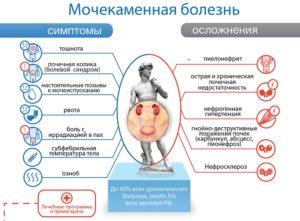 Профилактика и лечение мочекаменной болезни у мужчин