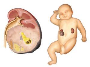 Злокачественная опухоль почек у детей