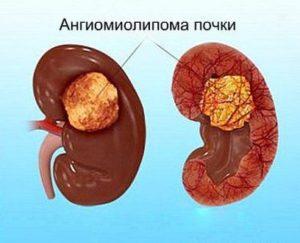 Липоматоз почки лечение