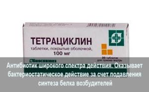 Тетрациклин при уретрите у мужчин