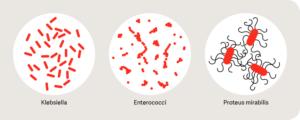 Протей мирабилис в моче лечение