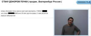 Как стать донором почки за деньги в москве