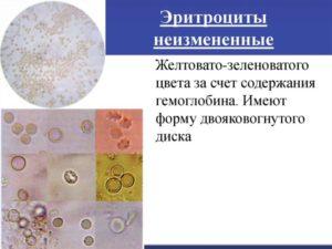 Выщелоченные эритроциты в моче причины