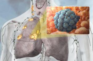 Рак почки метастазы в легких продолжительность жизни
