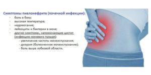 Цистит боль в почках температура