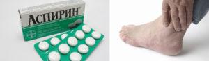 Аспирин при мочекаменной болезни