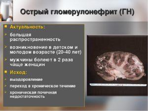 Гломерулонефрит исход заболевания