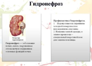 Что нельзя кушать при гидронефрозе
