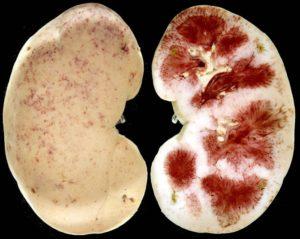 Острый обструктивный пиелонефрит справа