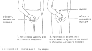 Тренировка мочевого пузыря у мужчин