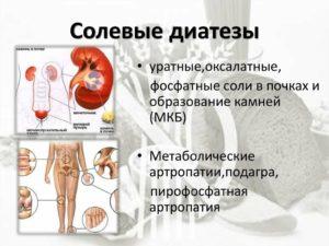 Солевой диатез почек у ребенка
