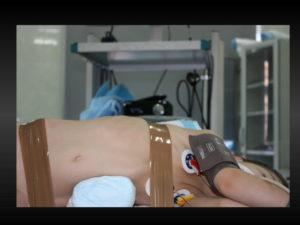 Как быстро проходит гидронефроз после операции