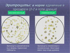 Что значит эритроциты в моче единичные