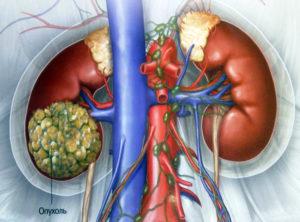 Как лечат рак почки