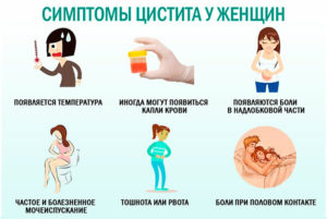 Облегчить симптомы цистита