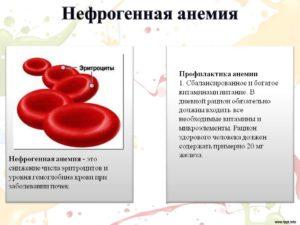 Почечная анемия симптомы