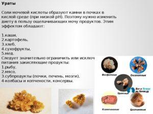 Какие продукты образуют камни в почках