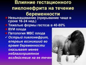 Как влияет пиелонефрит матери на плод