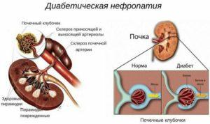 Заболевание почек при диабете