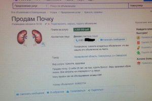 Как продать почку в белоруссии