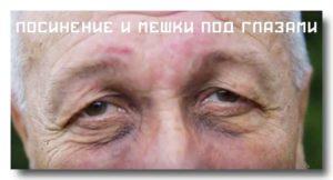 Болит почка мешки под глазами