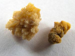Растворение уратных камней в почках