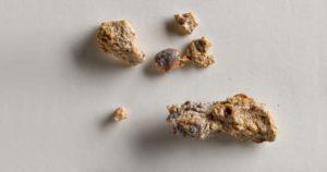 Камни в почках из за кальция