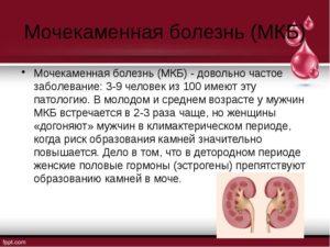 Презентация на тему мочекаменная болезнь