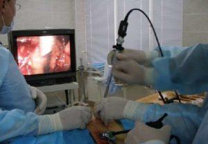 Операция по удалению камня из мочеточника у мужчин