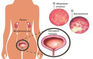 Как лечить застуженный мочевой пузырь
