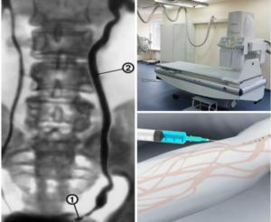 Какое контрастное вещество при рентгене почек