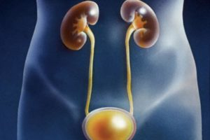 Опухоли мочеполовой системы урология