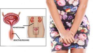 Грибковый уретрит у женщин симптомы