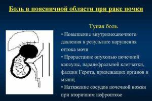 Тупая боль в области почек