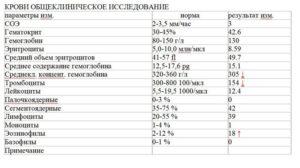 Анализ мочи на бак посев сколько делается
