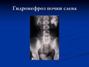 Гидронефроз 3 степени левой почки лечение