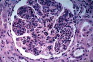 Аутоиммунный гломерулонефрит прогноз