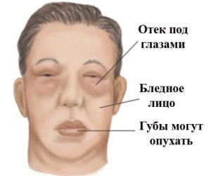 Отечный синдром при заболеваниях почек