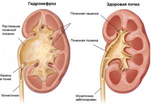Удвоение гидронефроз левой почки