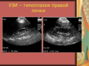 Диета при гипоплазии почки