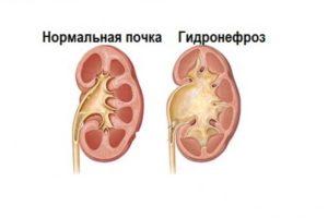 Гидронефроз левой почки у новорожденного лечение