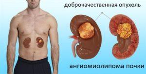 Ангиомиолипома паренхимы левой почки