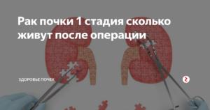 Рак почки 2 стадия сколько живут после операции