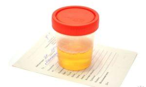 Лечение цистита в первом триместре беременности