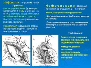 Нефроптоз 1 степени лечение