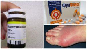 Мочевая кислота в крови повышена лечение таблетки