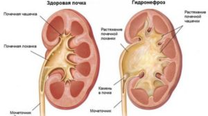 Признаки гидронефроза почки при беременности