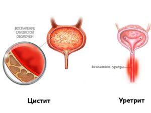 Цистит уретрит симптомы лечение