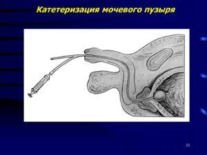 Катетеризация мочевого пузыря манипуляция